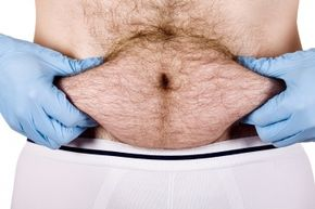 Belly button lint is a near universal experience, but some things such as body hair and clothing contribute to it.