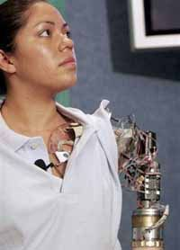 """Claudia Mitchell, the world's first """"bionic woman."""""""