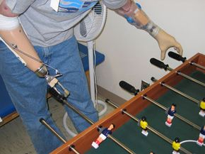 A Soldier with prosthetic arms plays foosball. See more modern medicine pictures.