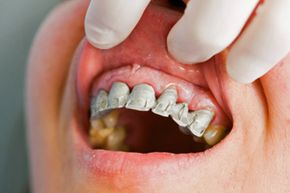 If your gums begin bleeding, head to the dentist immediately to find out why!