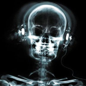 Bonephones transmit sound through the bones in the skull rather than through the outer ear and eardrum.
