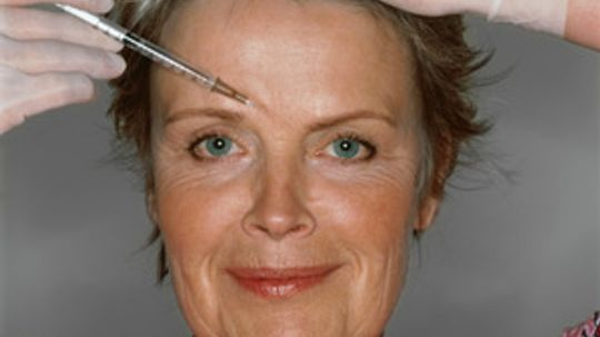 Does Botox make you happier when it takes away your frown?