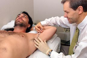 Tim Smith receives a Botox injection from Dr. Ib Odderson in Bellevue, Wash., to control his excessive sweating. When everyone else is cool and dry, he soaks through three shirts a day. View more men's health pictures.