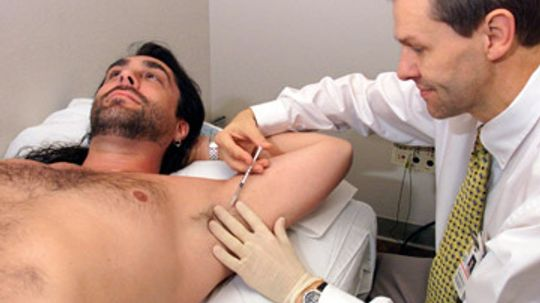 Can botox stop excess sweating?