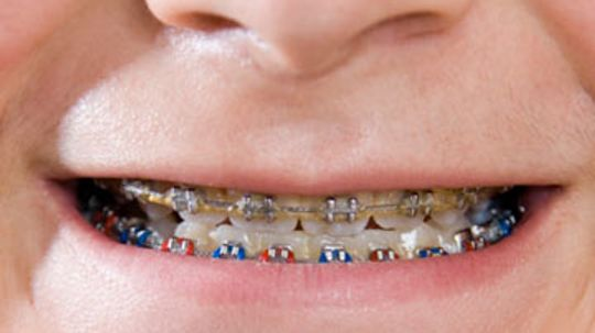 What colors and styles do braces come in?