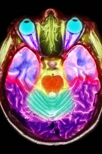 What does an artist's brain look like? See more pictures of the brain.