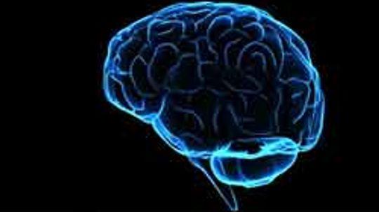 Brain Pictures