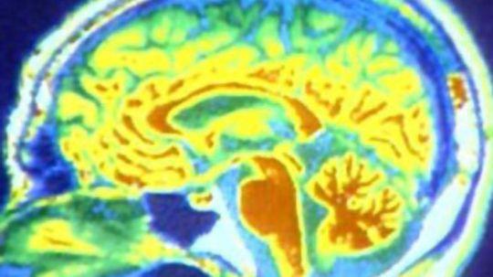 How Brain Death Works