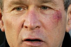 Skin Problems Image Gallery In 2002, President Bush choked on a pretzel, fainted and suffered an abrasion on his cheek and a bruise on his lower lip. Later in his presidency, he escaped bruising when he dodged a flying shoe. See more pictures of skin problems.