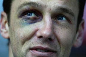 Northampton soccer player Ian Sampson with a black eye