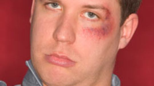 6 Tips for the Treatment of a Black Eye
