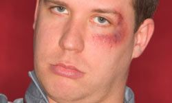 Person with black eye