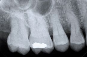 Ouch! Cavities can be painful and expensive. Avoid them by caring for your teeth.