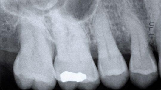 How do cavities form in teeth?