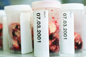 Brain samples from slaughtered cows wait to be tested for mad cow disease in Germany