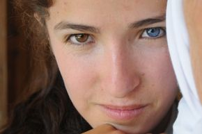 Nurcan Atli was born with heterochromia iridis, which caused her eyes to be different colors.