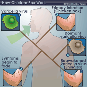 The stages of chicken pox, from virus to dormancy