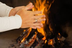 Warming cold hands and feet up too quickly can lead to chilblains.