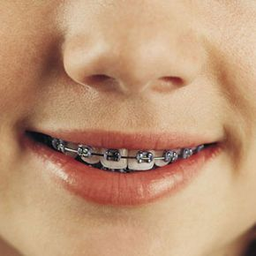 Orthodontists most often recommend dental braces to fix tooth crowding and jaw misalignment.
