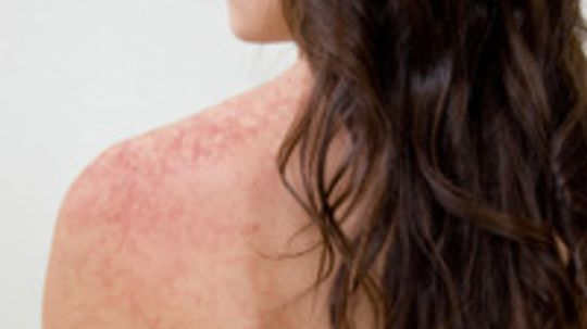 Do certain cleansers cause redness?