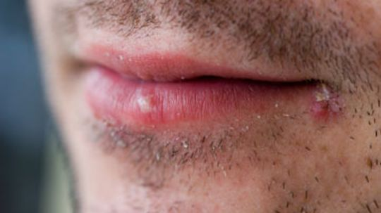 What do cold sores have to do with Alzheimer's?