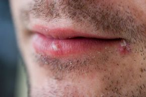 There's that nasty little bugger. A cold sore is caused by an outbreak of the herpes simplex virus 1.