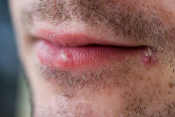 Close-up of man with two cold sores on his lip.