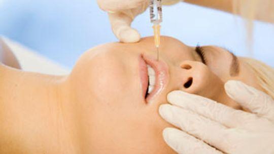 Collagen Lip Treatments