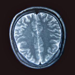 Concussions are a form of damage to the brain, the result of an impact with the inside of the skull.