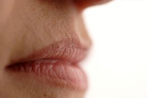 Personal Hygiene Image Gallery Can a lack of water lead to dry, cracked lips? See more personal hygiene pictures.