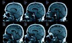 Following brain surgery to remove his temporal medial lobe, Henry Molaison suffered anterograde amnesia.