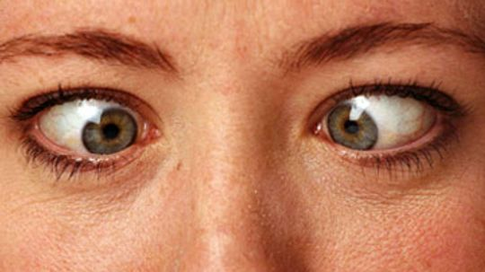 What if I crossed my eyes for 10 minutes?