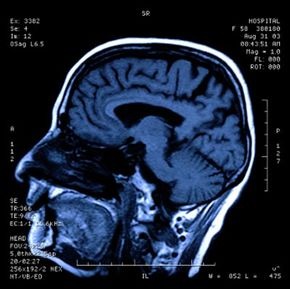 MRI scans are used to help the surgeon accurately locate structures within the patient's brain.