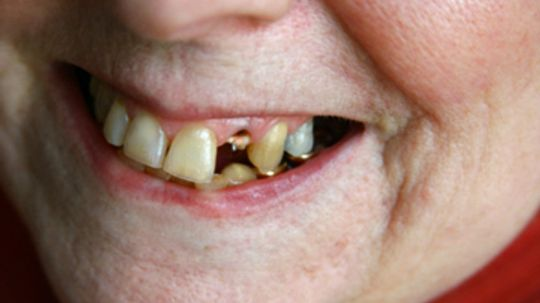 What are the consequences of delaying a root canal?