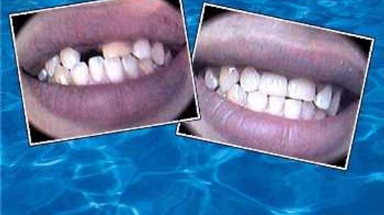 Three cosmetic dental procedures that won't cost a bundle