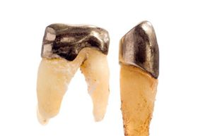 Crowns are like little hats for your teeth.