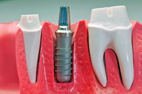 """The term """"dental implants"""" actually applies to the replacement roots that provide the foundation for the permanent or removable teeth."""