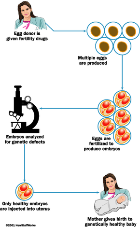 Preimplantation genetic diagnosis involves screening embryos for genetic defects.