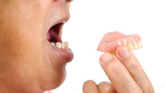 What are the different types of dentures?