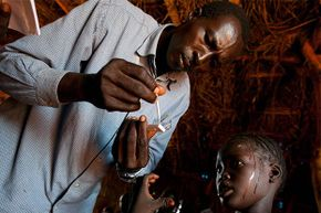 A girl with a high fever gets tested for malaria at the CARE medical clinic at the Yida refugee camp along the border between North Sudan and South Sundan.