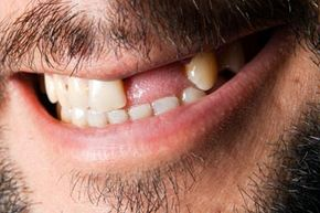 Did you know that missing teeth could indicate the presence of disease?