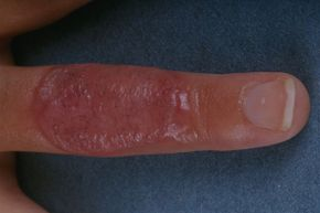 Staples and sutures could soon be a thing of the past when treating burn-damaged skin.