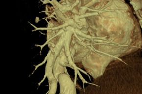 The availability of medical-grade glues has advanced the treatment of arteriovenous fistulas (pictured here) and malformations.