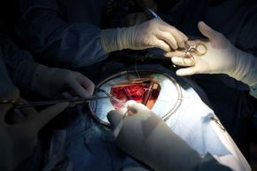 The breastbone break that's standard procedure for open-heart surgery can now be repaired with glue.