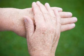 Skin Problems Image Gallery Hands often become drier with age. See more pictures of skin problems.