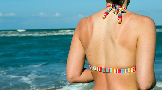Midnight Snacks Could Lead to … Sunburn?