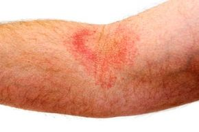 Could this red itchy rash be eczema? See more pictures of skin problems.