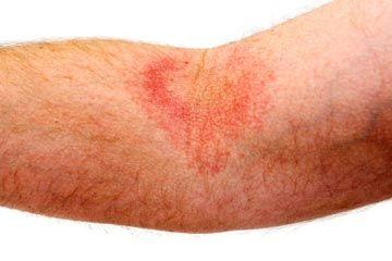 Eczema rash on right inner forearm.