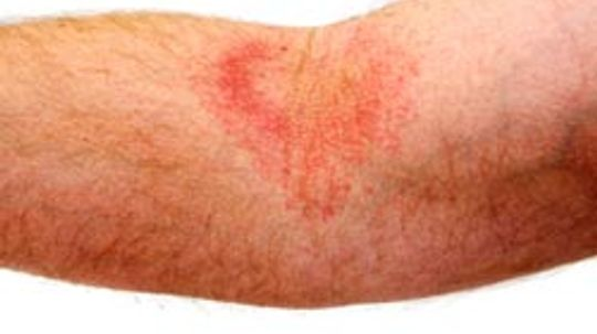 Will you get a rash if you have a gluten allergy?
