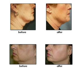 Patients before and after getting Thermage treatment